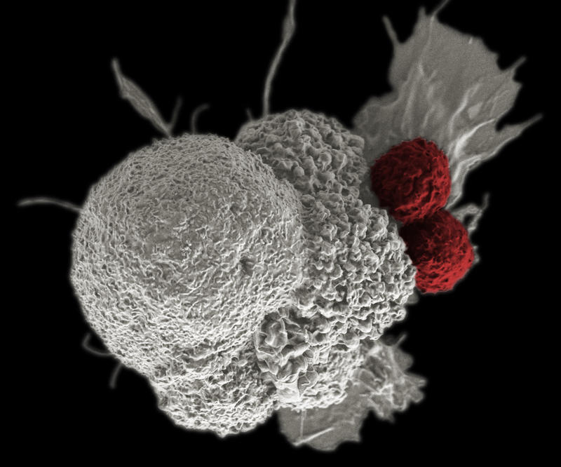 Scanning electron micrograph of an oral squamous cancer cell (white) being attacked by two cytotoxic T cells (red), part of a natural immune response.