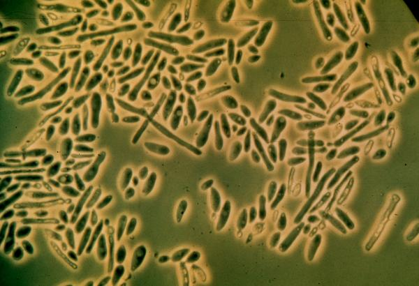 M540-1 Filamentous yeast from spoiled beverage. Filaments and budding. Phase. (1008X) (Maunder)