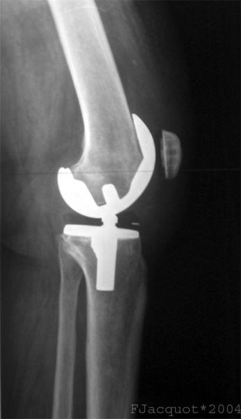 A lateral view of a total knee prosthesis taken by myself (fpjacquot) from the original radiograph