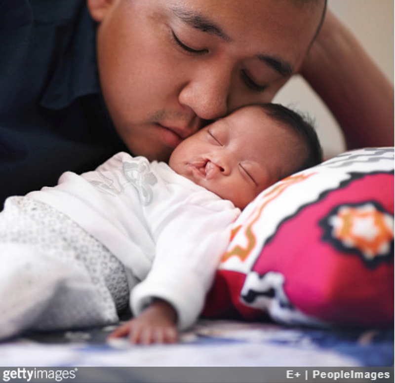 Tender moments with his precious daughter Shot of a young father bonding with his baby girl who has a cleft palate
