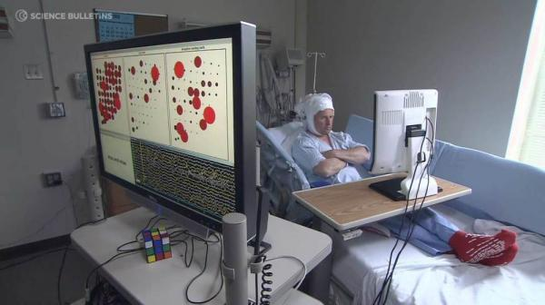 A patient participates in a brain-computer interface study. By placing an array of sensors directly on the brain and connecting them to a computer, researchers are able to decode brain signals into meaningful information, including some words.