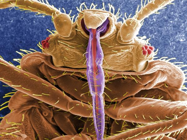 A bedbug, up close, shows off its skin-piercing mouth parts in purple.