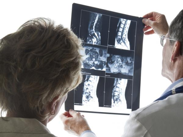 Is that MRI for back pain necessary?