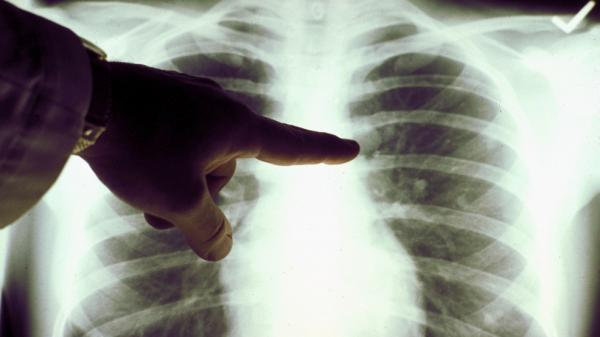 <p>A chest X-ray of a cigarette smoker's lungs.</p>