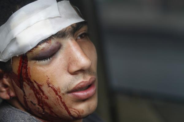 An Egyptian protester rests after being wounded during clashes with soldiers and their supporters in Cairo on Friday.