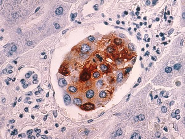 A cluster of malignant breast cancer cells that metastasized to the liver.