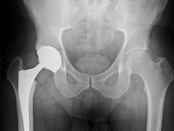 Hip replacements are a boon for aging boomers, but they're not perfect.