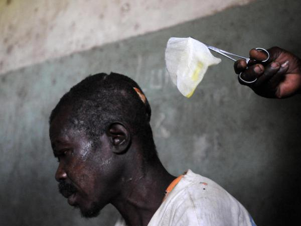 A man with machete wounds to his head from an attack by rebels of the Lord's Resistance Army (LRA) is treated in a hospital on February 21, 2009 in Ngilima, northeastern Congo.