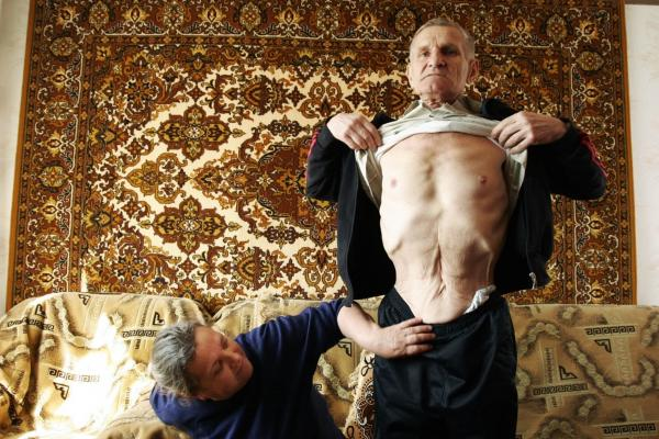 Viktor Gaidak with his wife, Lydia, in their apartment in the outskirts of Kiev, Ukraine, in April 2007. Gaidak worked for 24 years as an engineer at the Chernobyl plant, including nine years after the accident. Here, he shows his scar from a 2004 surgery for colon cancer.