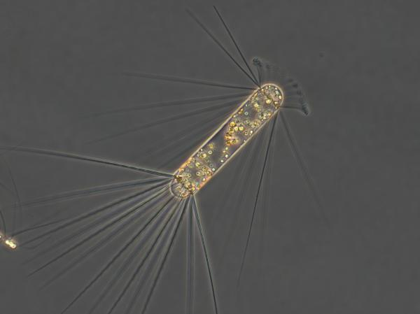 The diatom Corethron pennatum has spines like its related species Chaeotceros atlanticum and Chaeotceros dichaeta. However, this diatom consists of one cell while the other two are cell chains.