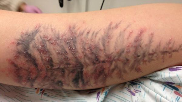 Along with a tattoo, this person got an infection.