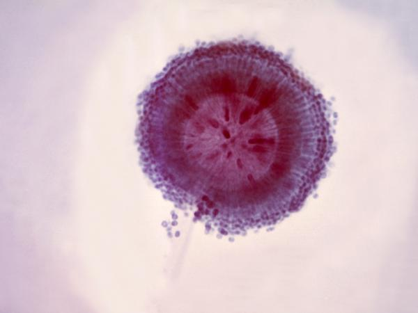 The fungus <em>Aspergillus niger</em> shows up as a black mold on decaying vegetation and food.