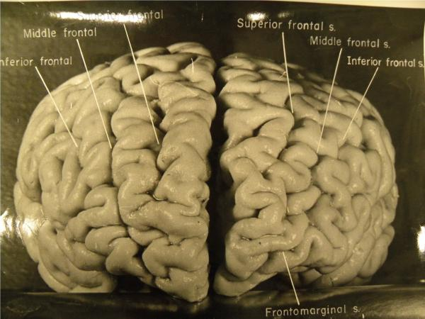 Einstein's brain from the front: According to a new study, Einstein's pre-frontal cortex (connected to higher cognition and memory) is unusually convoluted. For example, on the right side of the brain he has four large ridges, where most people have only three.