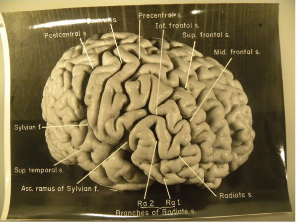 A black and white photo of the front of Albert Einstein's brain from the right side taken by Thomas Harvey with a 35-mm camera in 1955. Harvey took dozens of photos, many from non-conventional angles.
