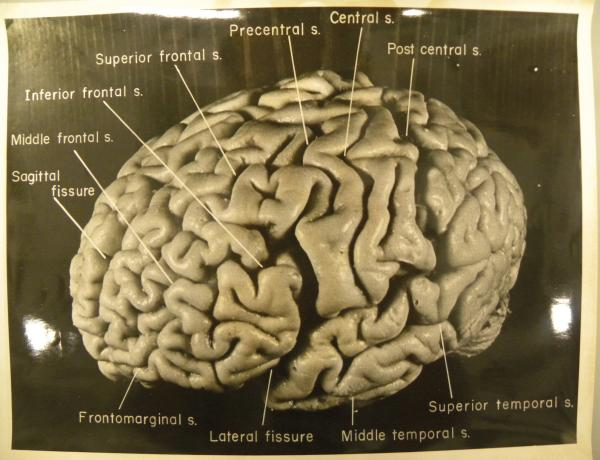 A photo of Albert Einstein's brain from the left: anthropologist Dean Falk and her colleagues found that the parts of Einstein's brain associated with movement and sense in the face and tongue were larger on the left side compared to the right. Why? Falk's not sure.