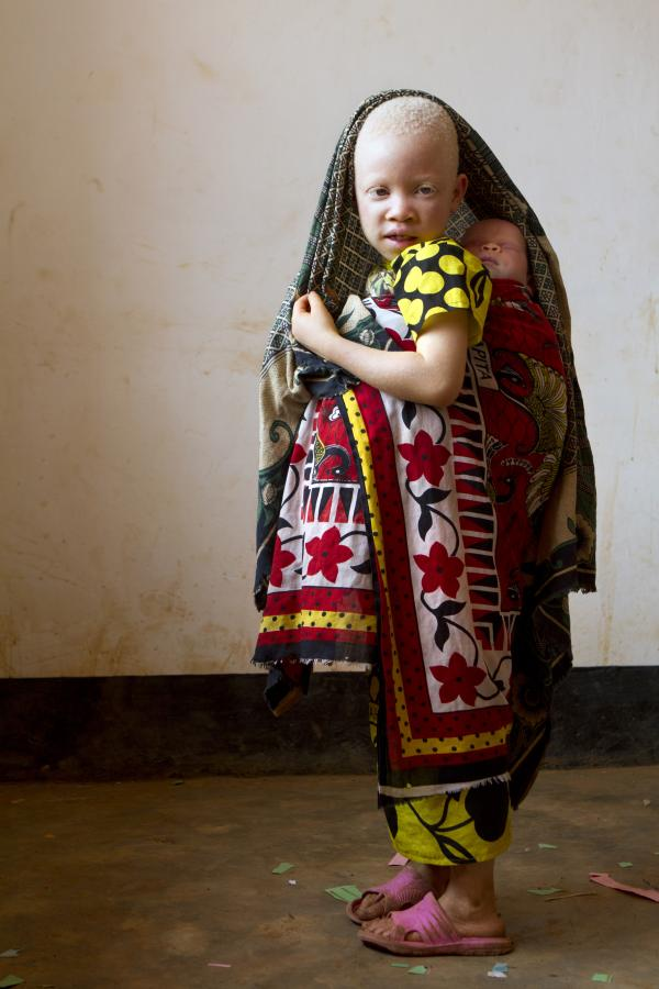 'At Kabanga Primary School and Center for People with Albinism, in Kabanga, Tanzania on Friday, Aug. 31, 2012. (Photo/Jacquelyn Martin)'
