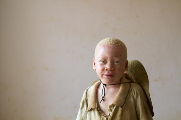 'At Kabanga Primary School and Center for People with Albinism, in Kabanga, Tanzania on Saturday, Sept. 1, 2012. (Photo/Jacquelyn Martin)'