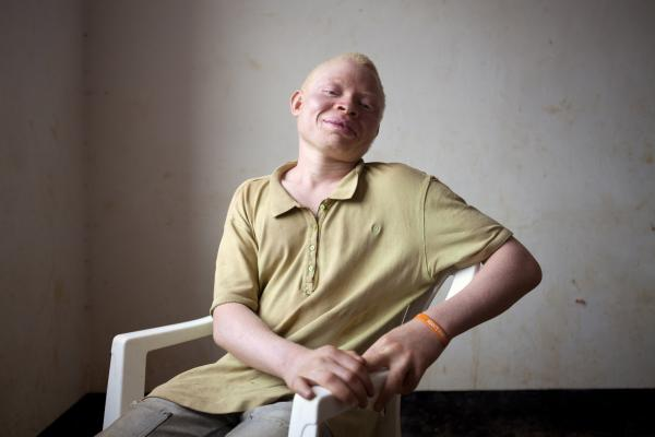"Gilbert Andrews, 15, wants to become a lawyer to help protect the rights of people with albinism. ""Some educated people know we are real people, but others call us bad names,"" he says. ""We faced the public with being discriminated against in class. Teachers put us in the back and said that people with albinism cannot be educated."""