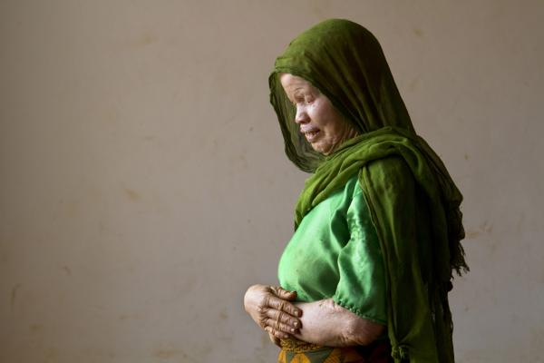 Lukia, 50, lives at the center after killings near her village made it unsafe for her to stay there.