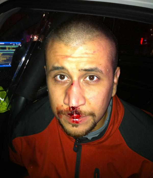 A photograph of George Zimmerman on the night he shot Trayvon Martin.