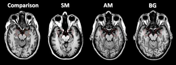 In these brain scans, amygdala damage can be seen in three patients (known as SM, AM and BG) with Urbach-Wiethe disease. See the dark spots within the areas circled in red. A healthy person is shown (left) for comparison.