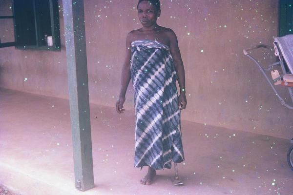 """A woman with a prosthetic leg at the Benue Leprosy Settlement. The hospital provided vital medical services for amputees and lepers who had lost feeling in limbs. In some cases, amputation was considered preferable to simply going through the course of leprosy drugs."""