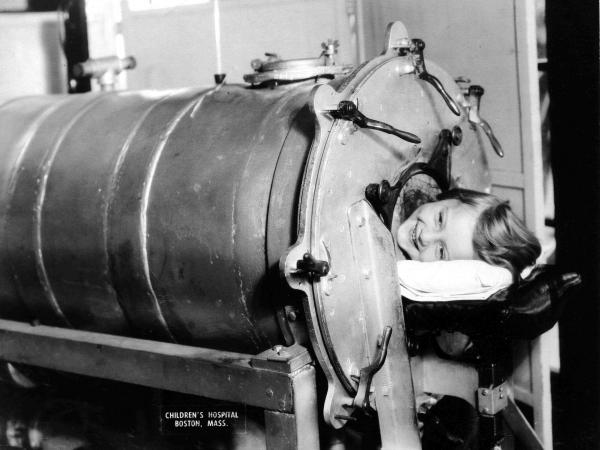 Many polio victims couldn't breathe on their own because of paralysis in their chest muscles. The iron lung — a simple, air-tight chamber that regulates air pressure — kept patients breathing until the paralysis passed. At the peak of the epidemic, rows of iron lung ventilators filled hospital rooms.