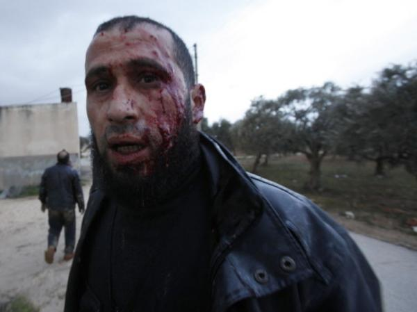 This anti-regime fighter retreated for medical treatment following an exchange of fire with army troops Wednesday in Idlib, Syria.