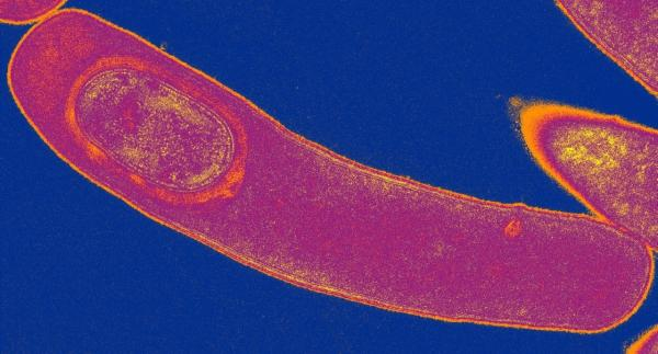 <em>Clostridium difficile</em> bacteria produce a toxin that damages the intestine and causes severe diarrhea.