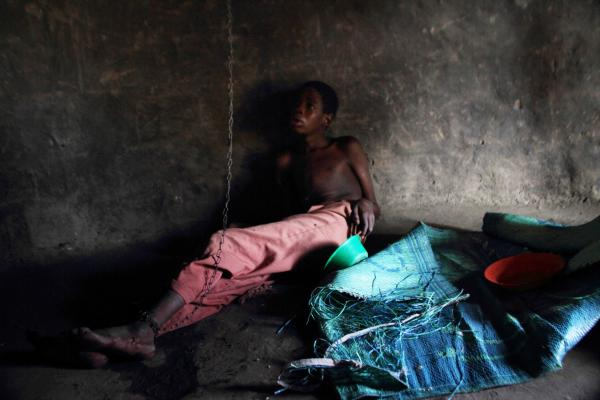 Robert Arima, 17, lies on the floor of his home in a village in Pader district. A chain runs from his ankle to the roof of the hut. Many parents can't afford to bring their children to a center that is equipped to treat nodding syndrome patients. Some parents, such as Robert's, tie or chain the child so they can continue to work, while ensuring the child won't wander off from the village.