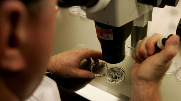 Human embryos under a microscope at an IVF clinic in La Jolla, Calif.