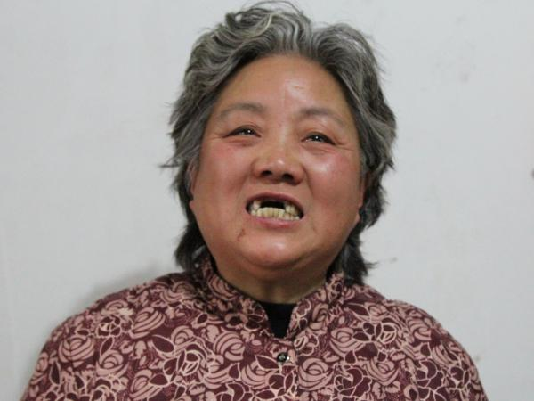 Shen Lixiu, 58, says she had her front teeth kicked out in a re-education through labor camp. She says authorities had her beaten so she would sign a compensation agreement for the government demolition of her karaoke parlor in Nanjing.