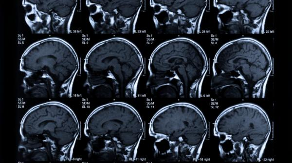 The main goal in stroke treatment: saving brain.