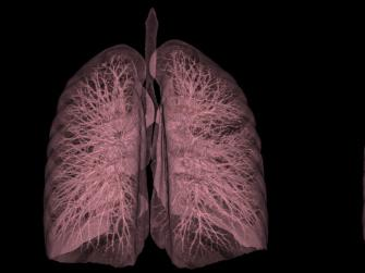 A CT scan of a human lung.