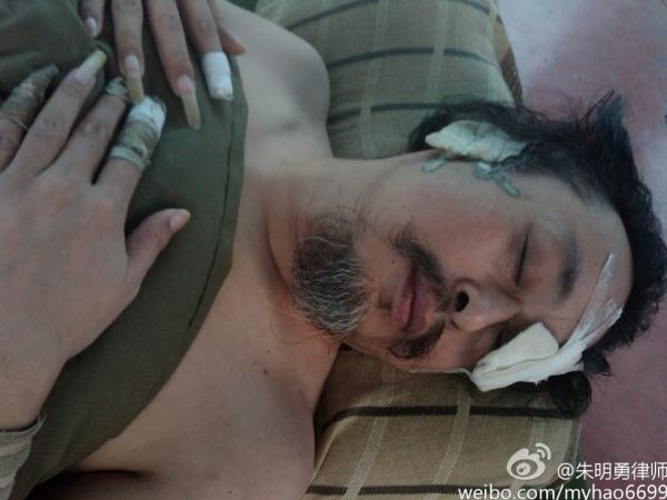<p>Yang Jinde says he was tortured in a police dog training center, leaving him blind in one eye and deaf in one ear. These pictures were taken by lawyer Zhu Mingyong inside a detention center, where the lawyer also shot a video of Yang that has gone viral. </p>