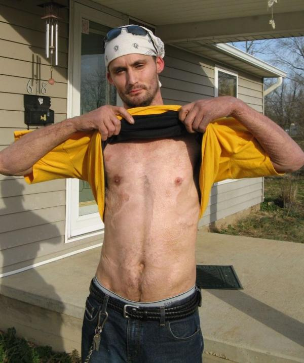 Dennis Potter, 29, was burned in a shake-and-bake meth lab explosion in December 2009. He spent the next five weeks wrapped in bandages and underwent numerous skin graft operations over the course of his recovery.