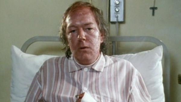 Michael Gambon plays a writer hospitalized with a horrible skin condition in the 1986 BBC miniseries <em>The Singing Detective.</em>