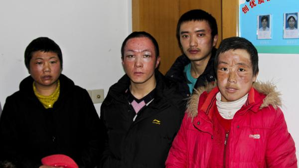 Workers burned during an explosion at an Apple supplier factory in Shanghai are seen at a hospital where they are receiving continued treatment for their injuries. According to the factory, 24 workers were burned in the explosion.