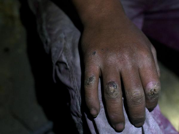 A 17-year-old miner's hand, already battered from back-breaking work in Cerro Rico in Potosi, Bolivia, on Aug. 17.