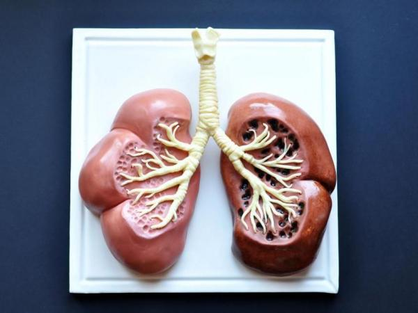 "Lung Cancer Warning: A cake by <a href=""https://www.facebook.com/SarahHardyCakes"">Sarah Hardy Cakes</a> in London juxtaposes a healthy lung with that of a smoker."