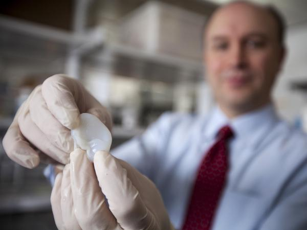 Larry Bonassar shows off an ear  that he and his colleagues at Cornell University built out of living cartilage cells with the help of a 3-D printer.