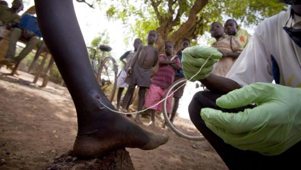 A medical worker extracts a Guinea worm from a child's leg in northern Ghana, February 2007.