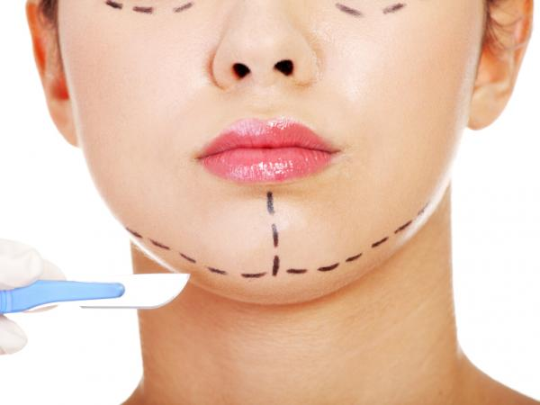 "Plastic surgeons tend to say a patient is going to look ""refreshed,"" not younger."