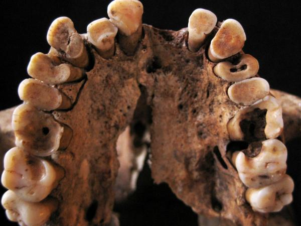<strong>Say aaaaaah!</strong> Dental caries and other signs of oral disease are plain to see in the upper teeth of this hunter-gatherer, between 14,000 and 15,000 years old. The findings challenge the idea that the original paleo diet was inherently healthy, says paleo-anthropologist Louise Humphrey. It all depended, she says, on what wild foods were available.