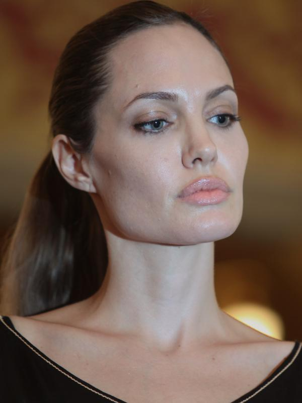 Hollywood star Angelina Jolie has sparked a discussion about breast cancer risk and how to manage it.