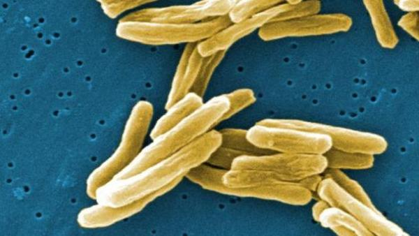 People who test positive for infection with bacteria that cause tuberculosis can be treated before they enter the U.S.