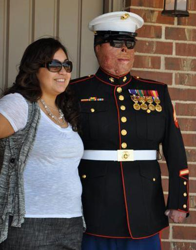 Jessica and Anthony Villarreal in December 2011, more than three years after the explosion that severely burned Anthony in Afghanistan.