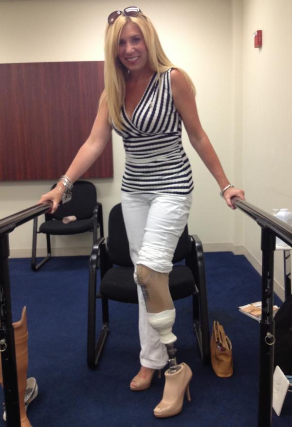 "Heather Abbott tests out a high-heeled prosthetic to see if she can walk in heels. ""No problem!"" she says."