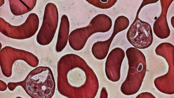 Red blood cells infected with the <em>Plasmodium falciparum</em> parasite. <em>Plasmodium</em> is the parasite that triggers malaria in people.