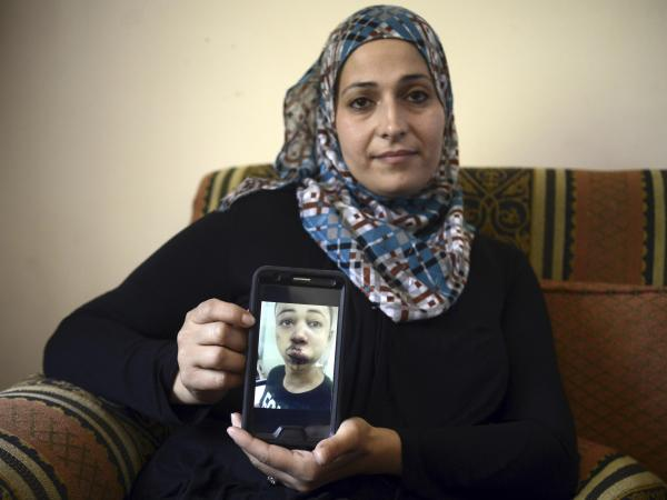 Suha Abu Khdeir, mother of 15-year-old Tariq Abu Khdeir, a U.S. citizen who goes to school in Tampa, Fla., shows a picture of her son sent from Israel after he was allegedly beaten by Israeli police.